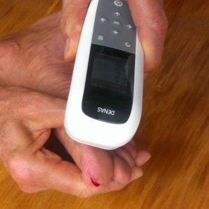 DENAS PCM 6 injury squashed toe