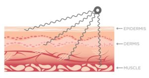 Does microcurrent therapy work?